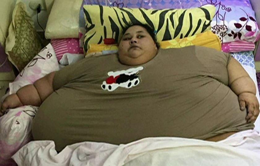 Mais pesada do mundo, egípcia perde 250 kg dois meses após bariátrica