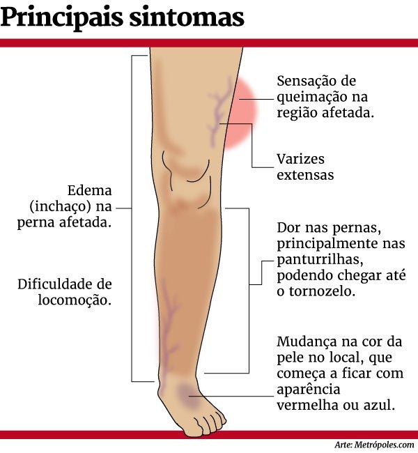 Trombose pode desencadear doenças como AVC e embolia