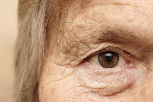 Resultado de imagem para olhos idosas