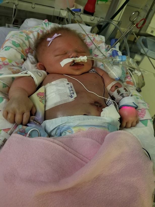 Newborn-baby-girl-dies-just-days-after-contracting-a-killer-virus-from-someone-with-HERPES-who-kisse3