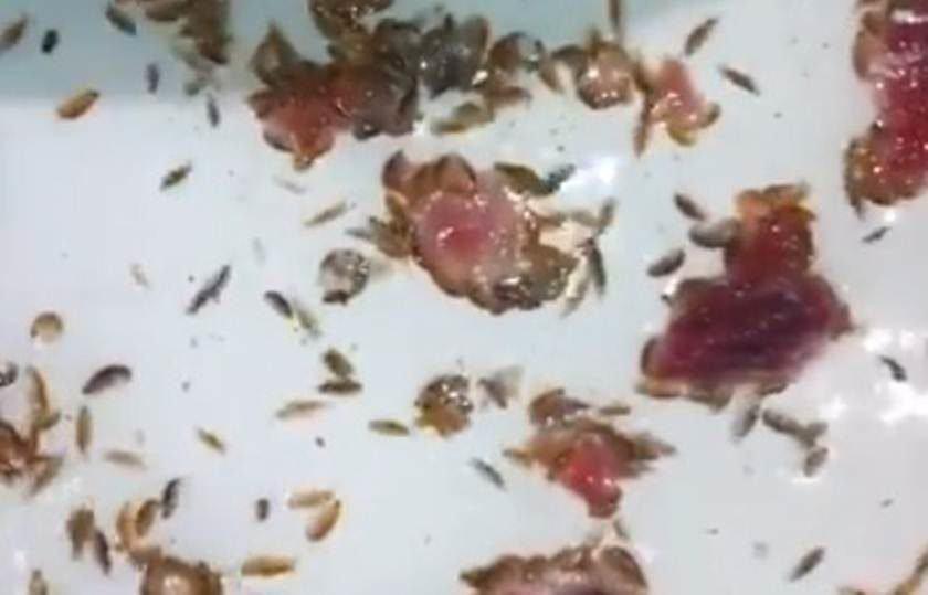 'Piolhos do mar' deixam pés de jovem australiano em sangue