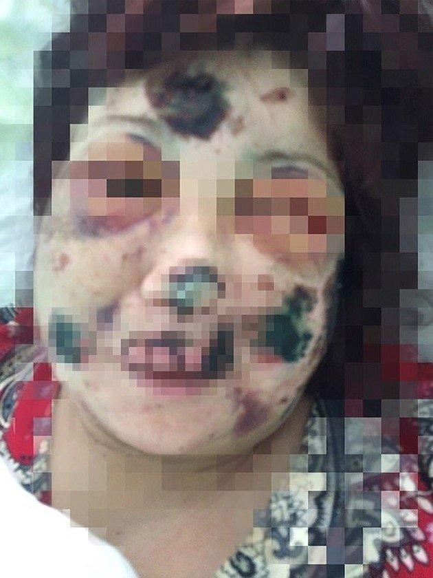 [MUZZED] Russian 'Hannibal Lecter' left a dinner date horrifically disfigured after biting off her ears, nose and fingertips.