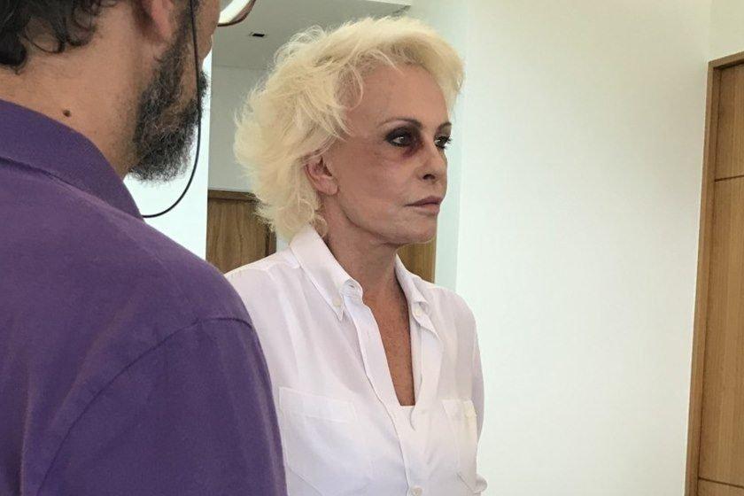 Ana Maria Braga surge com o olho roxo e o motivo surpreende