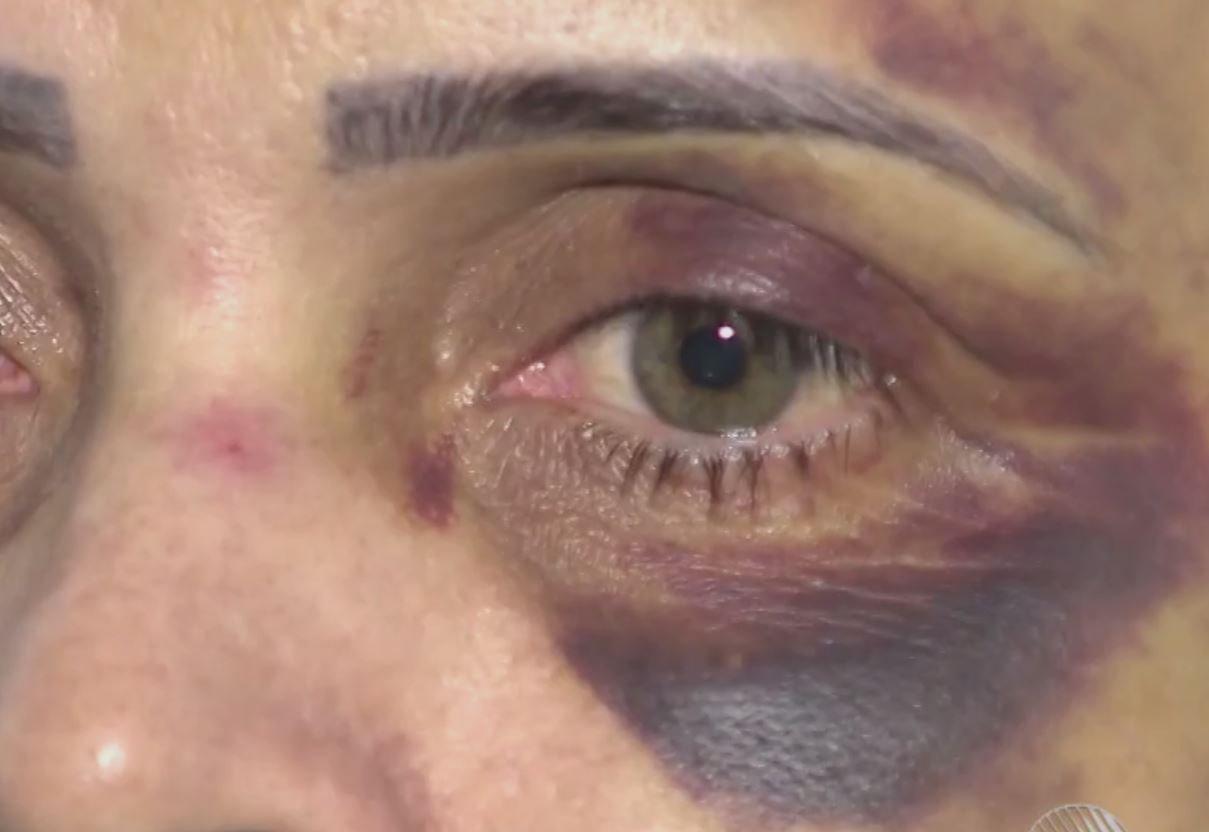 Ex denuncia humorista por agressões; ela ficou 3 dias internada