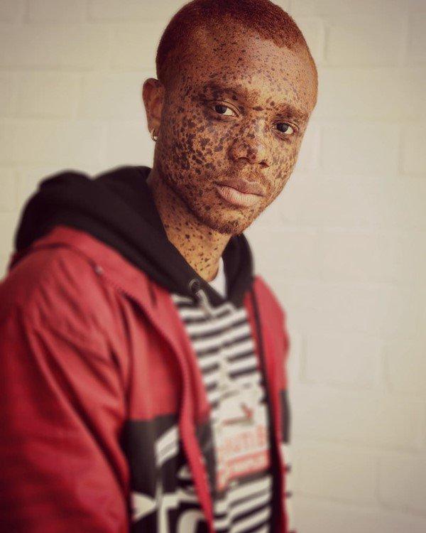 Símbolo da diversidade no mundo da moda, Ralph Souffrant nasceu no Haiti. Tem uma condição na pele que lembra vitiligo. Foi em Nova York que ele começou carreira como modelo