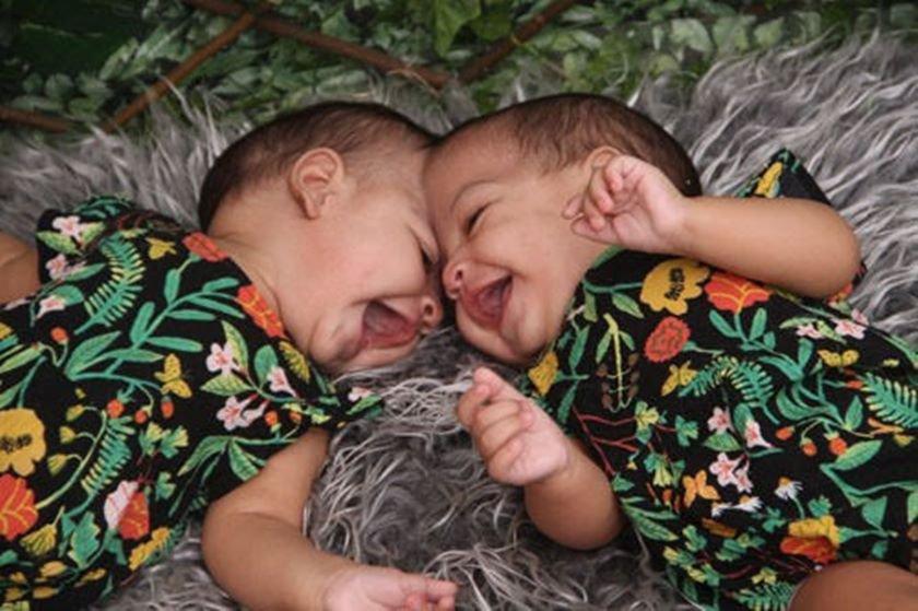 Elas vinham sendo acompanhadas pela equipe médica do hospital desde que eram recém-nascidas.
