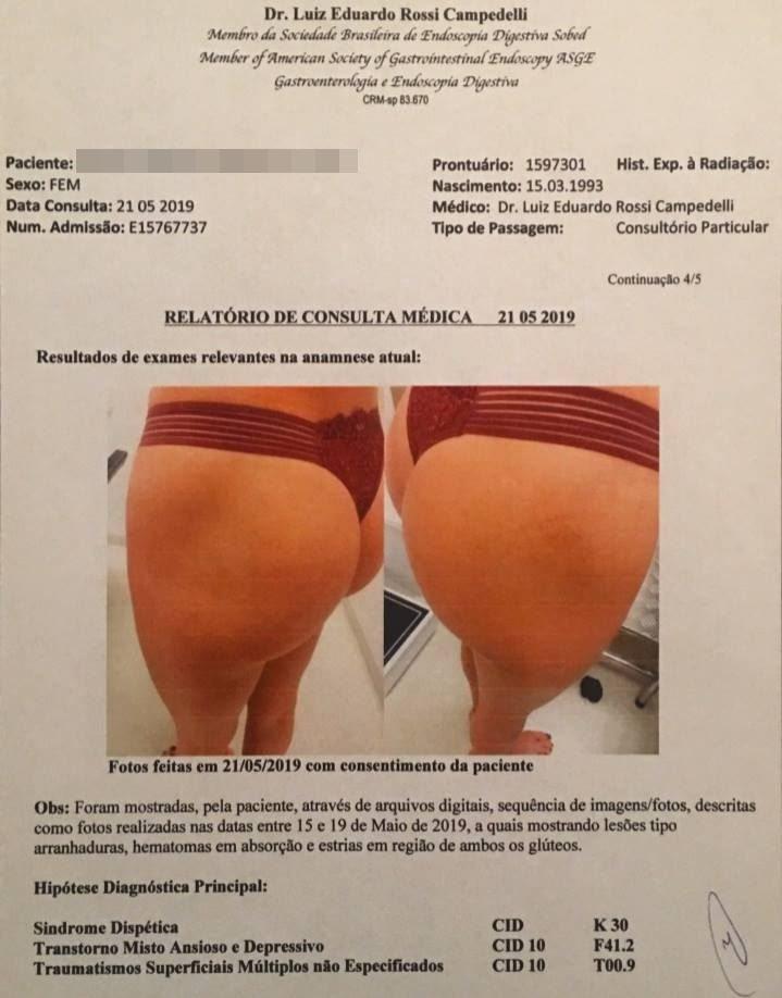 Imagem do laudo que comprovaria agressões sofridas pela suposta vítima de Neymar (Foto: Reprodução)