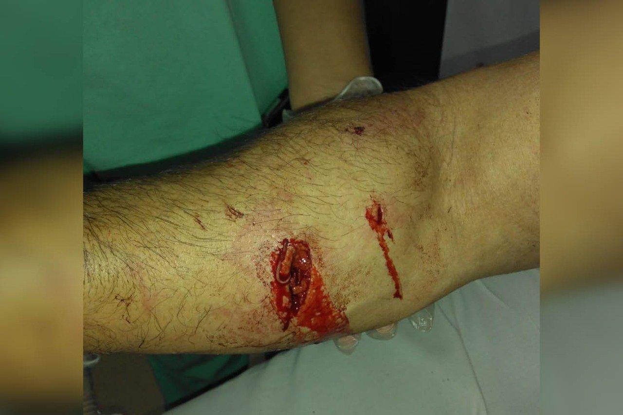 sangue no braço