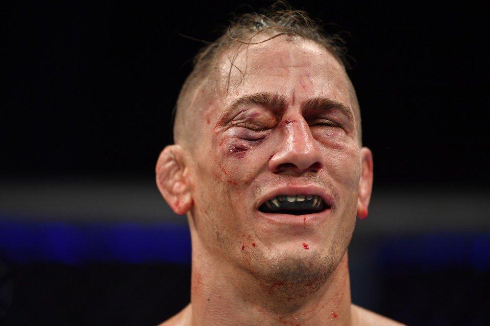 Niko Price com rosto machucado após UFC 249