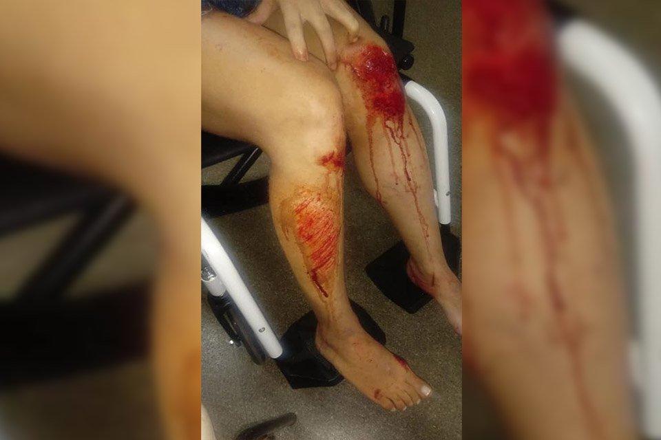 pernas machucadas