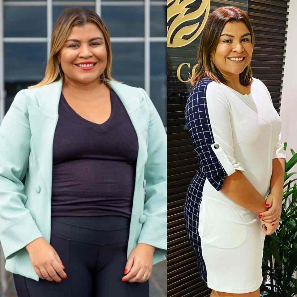 Denise mostra antes e depois