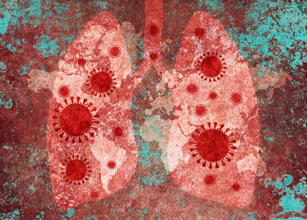 arte coronavirus COVID-19 mundo mundial