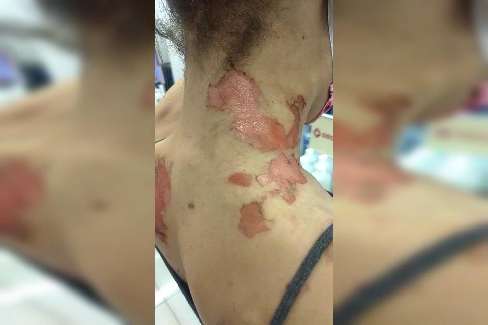trans agredida por servidor do Itamaraty_lesões