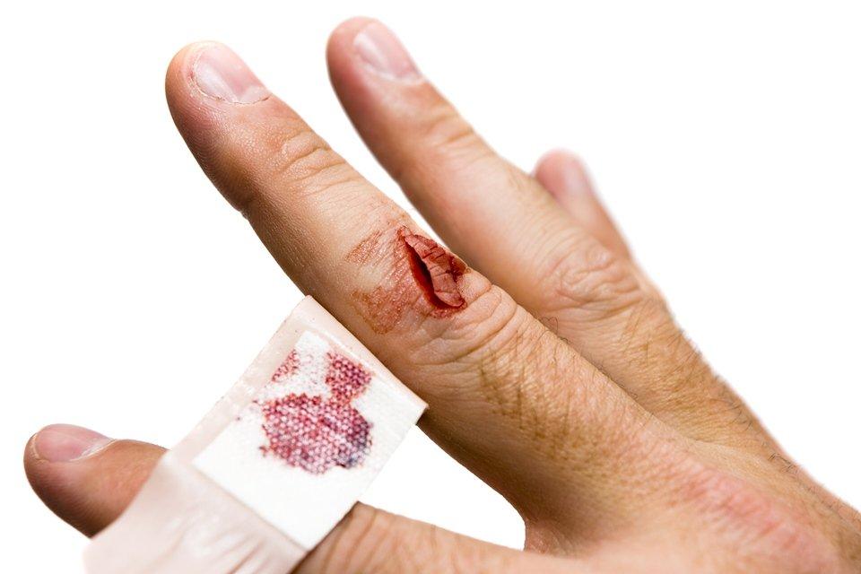 Dedo cortado com curativo