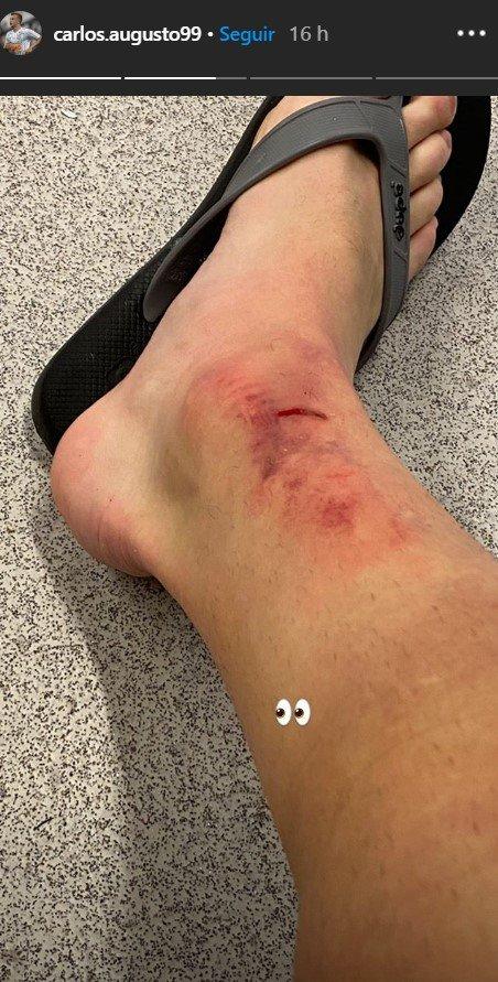 Carlos Augusto Corinthians perna machucada