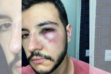 Matheus Ribeiro vítima de assalto