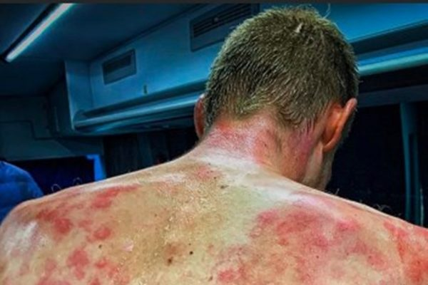 Tim Declerq mostra costas machucada