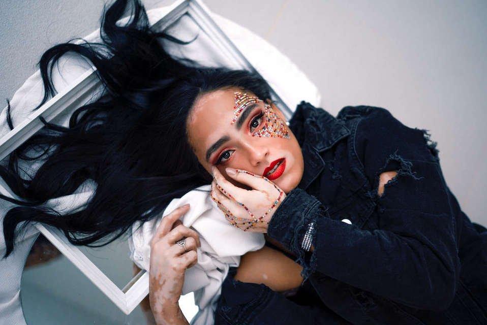 modelo com vitiligo Larissa Sampaio