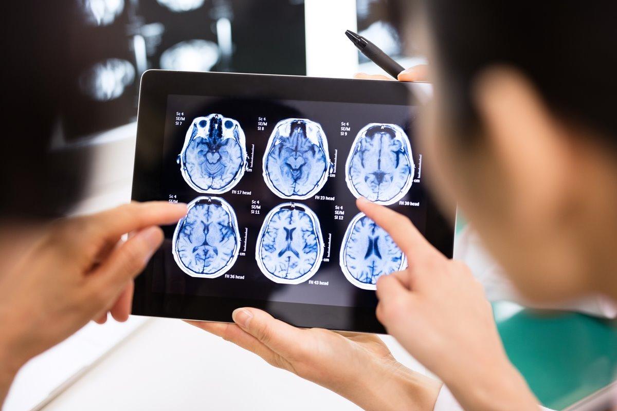 Pesquisadores com tablet com imagem do cérebro