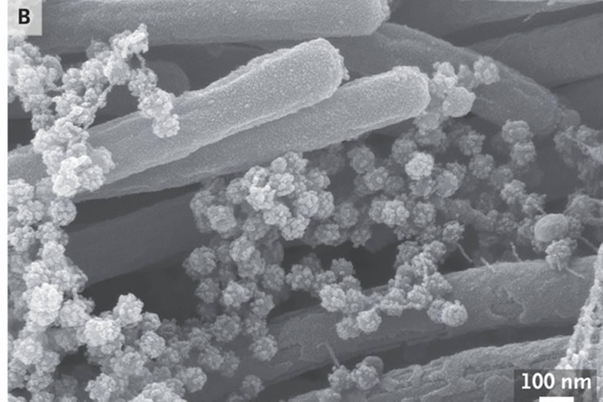 coronavírus nas vias aéreas