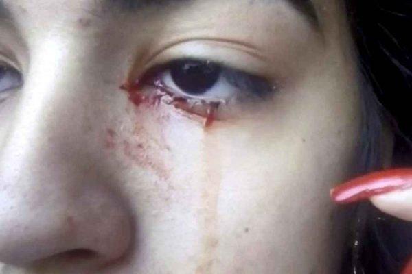 Jovem chora sangue sem motivo aparente