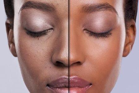 Racismo nos cuidados com a pele