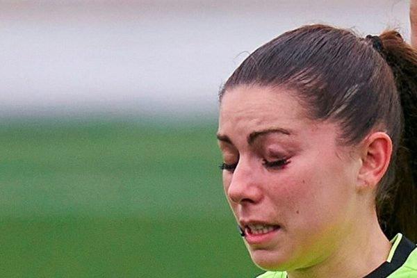 Sara Fernandez com hematoma no olho