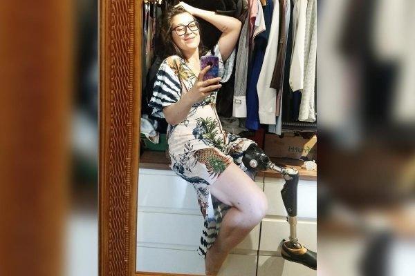 A jornalista Elizângela Toniolo, que perdeu uma perna por causa de um tumor
