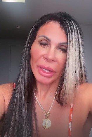 Gretchen após harmonização facial