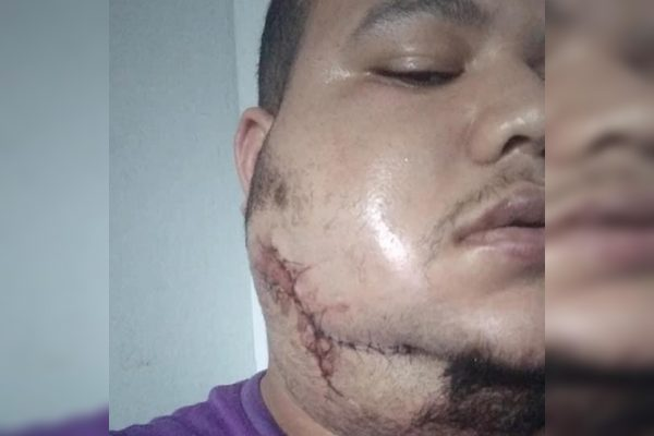 Homem ferido no rosto