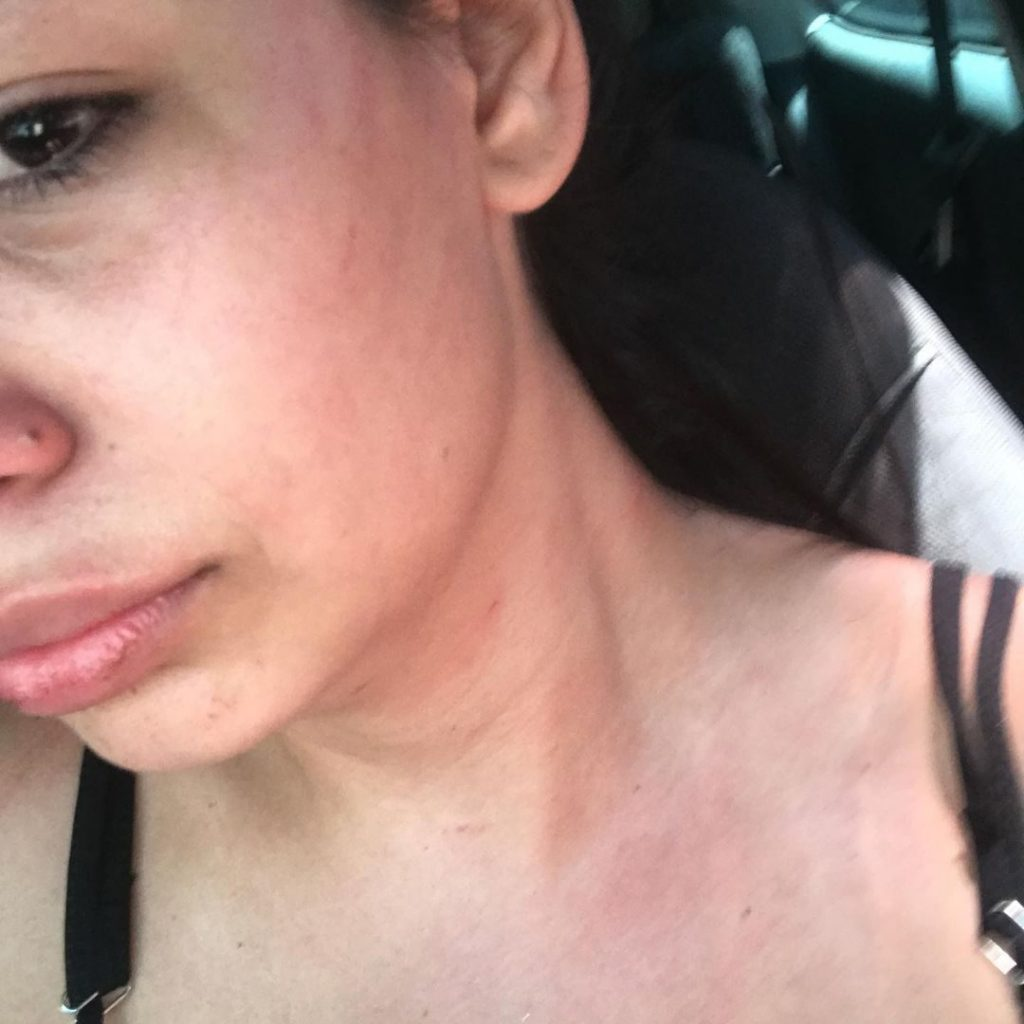 "Ex relata agressões de Darlan Cunha, o Laranjinha: ""Me bateu até desmaiar"""