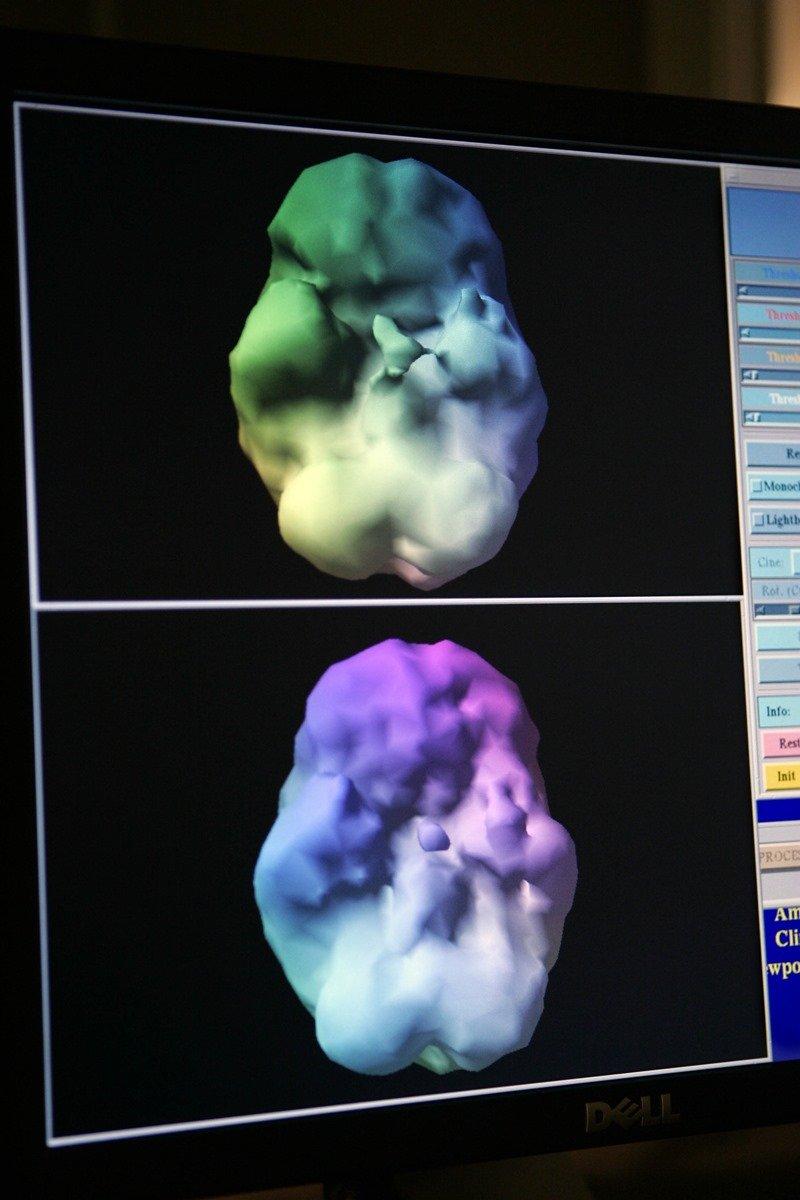 Varredura cerebral - Daniel Amen
