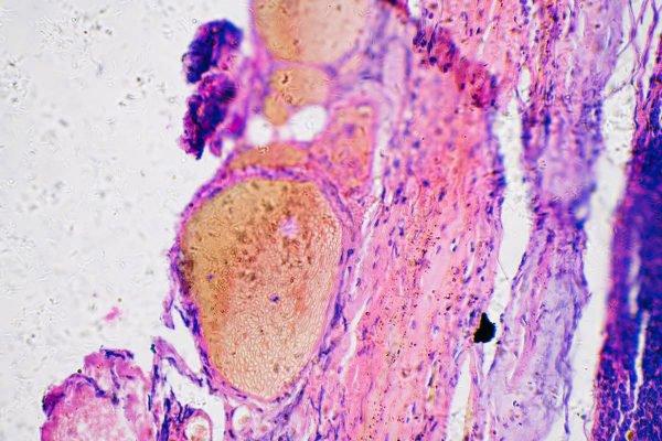 Melanoma cancer no microscopio