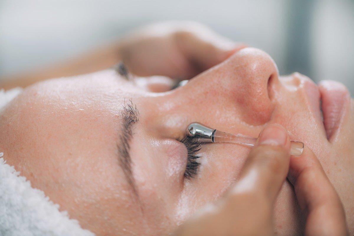 Tratamento olheiras