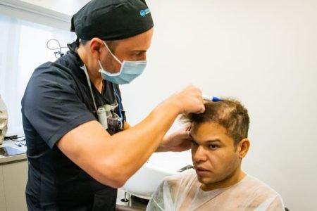 Tierry consertando transplante capilar que deu errado