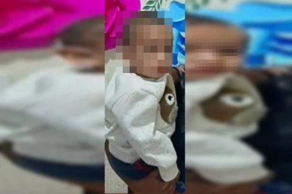 Menino de dois anos baleado no olho