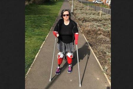 Allison Friday precisou amputar os dois braços e as duas pernas