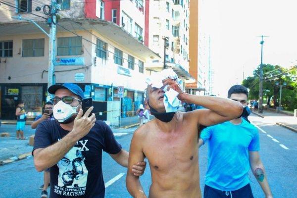 Daniel Campelo perdeu a visão após ser atingido por bala de borracha em protesto em Recife (PE)