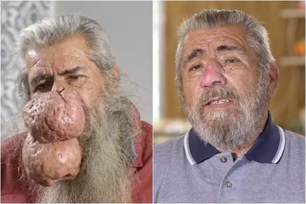 Roger - antes e depois