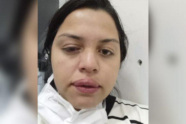 Faxineira atacada pelo ex-patrão com ácido teme perder visão de um olho