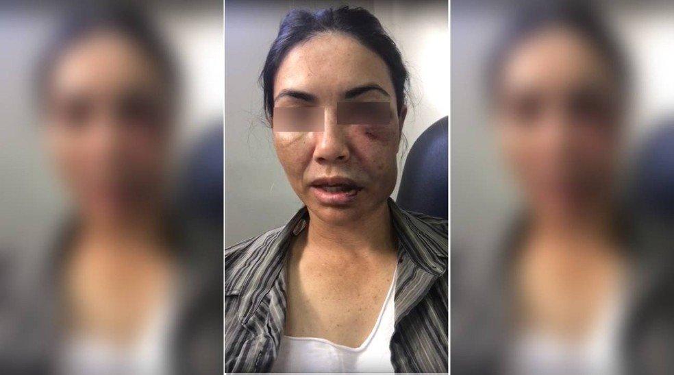 A motorista de aplicativo foi agredida e teve o rosto desfigurado