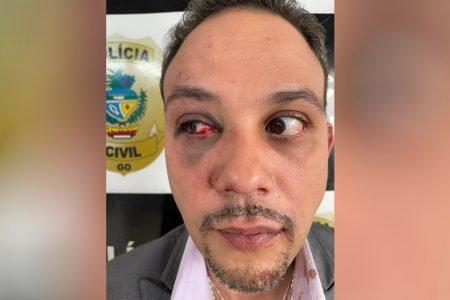 goias advogado agredido por pm