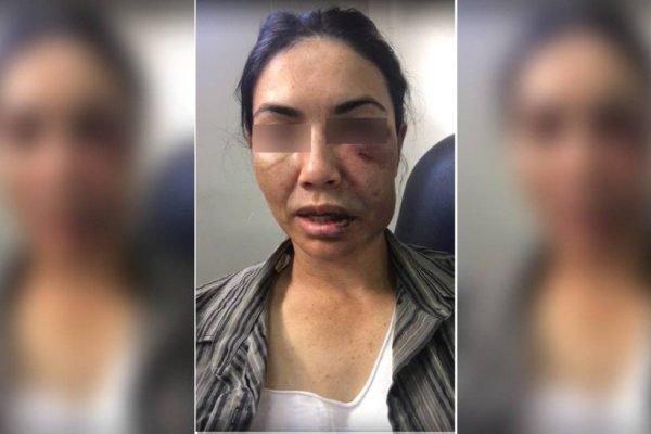Marcia Angola teve o rosto desfigurado