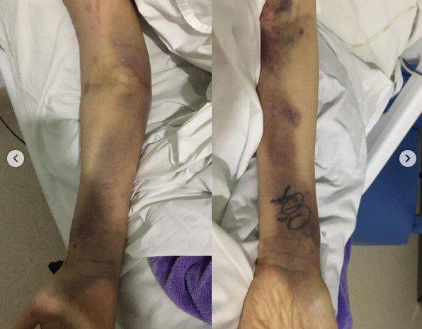 Hematomas nos braços causados por picadas de agulhas