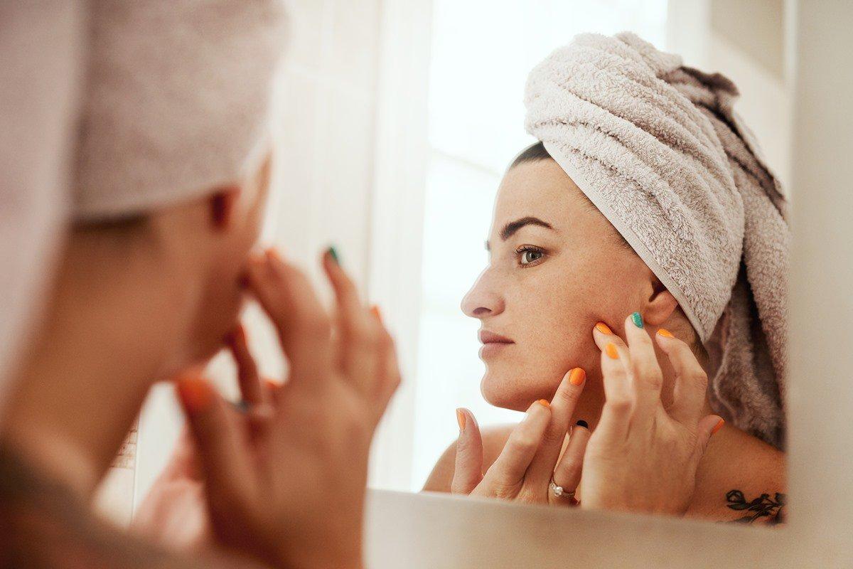 Pele - acne - mulher_2