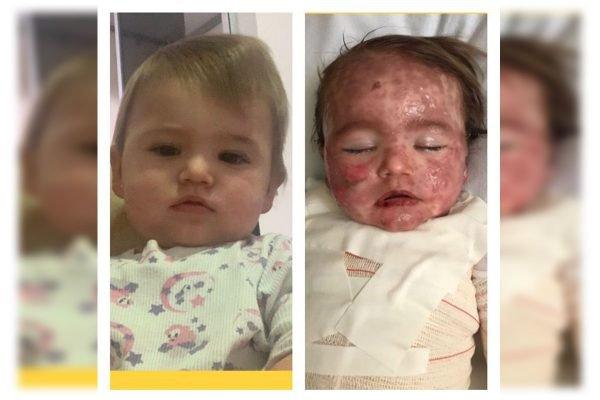 Bebê teve reação alérgica a medicamento e precisou ser internada. Família pede ajuda