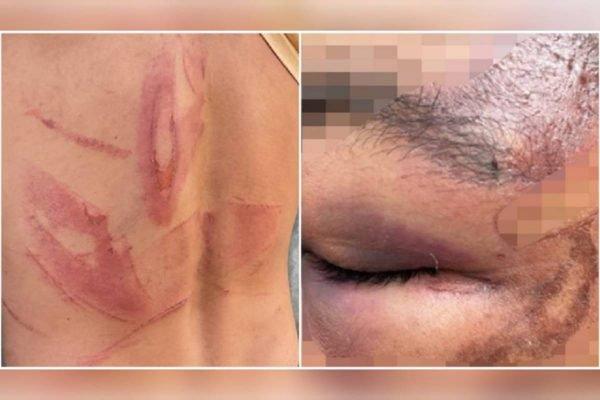 casal de trabalhadores rurais é agredido por fazendeiro e esposa por cerca de 3h em goiás