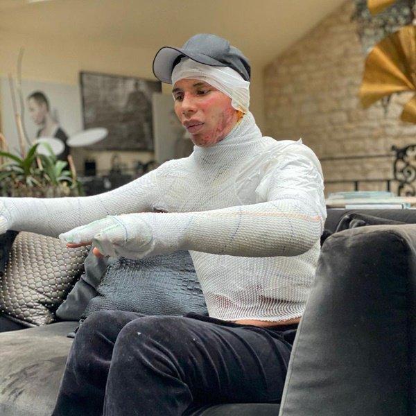 Olivier Rousteing sofre queimaduras