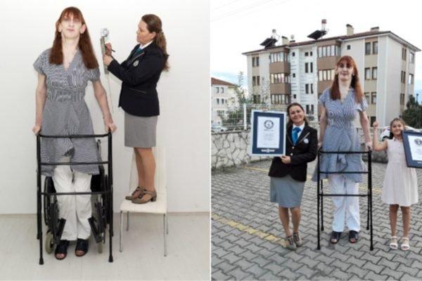 Turca é considerada a mulher mais alta do mundo